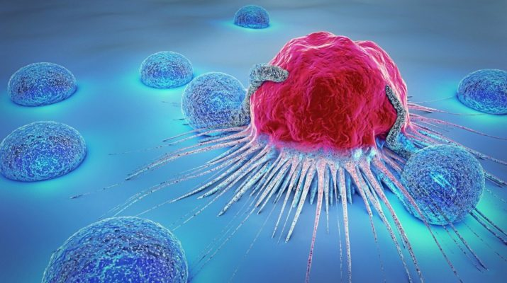 Alternative Payment Model Suggested For Prostate Cancer