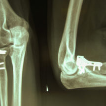 The Types of Fractures that Occur in the Elbow